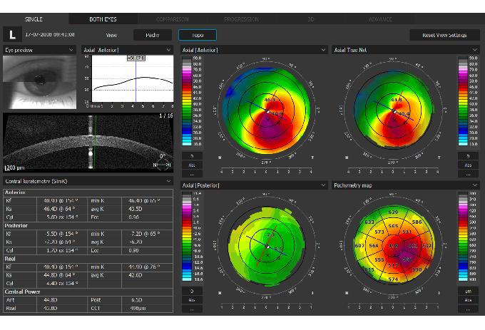 Copernicus REVO Topographie Modul