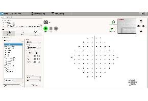 Projektionsperimeter PTS-2000