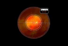 Volk indirektes Kontaktglas Area Centralis - schwarz/individuelle Gravur möglich