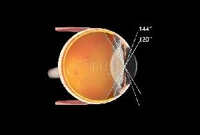 Volk indirektes Kontaktglas QuadrAspheric - individuelle Gravur & Flange möglich