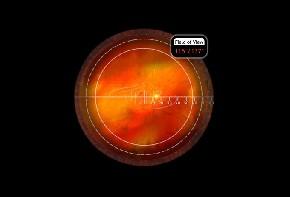 Volk PDT Laser Lupe Photo Dynamische Therapie - individuelle Gravur möglich