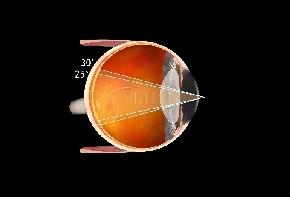 Volk Fundus Laser Kontaktglas 20mm Skleralrand - schwarz/ indiv. Gravur möglich