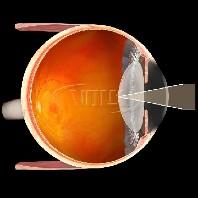 Volk Einweg Kapsulotomie Kontaktglas - 10 Stück