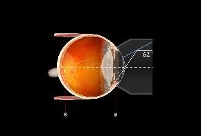 Volk Gonioskop G1 Trabeculum - individuelle Gravur möglich