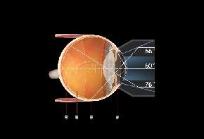 Volk G-3 Gonioskop Fundusglas - individuelle Gravur möglich