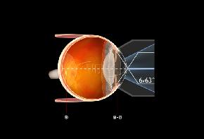 Volk G6 Goniskop - individuelle Gravur möglich/ Flange und Ringgröße wählbar
