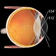 Volk ind. vitreo Kontaktglas Mini Quad XL - SSV oder Standard Kontaktfläche