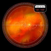 HRX VIT indirekte OP Lupe schwarz/ mit Standard oder SSV Kontaktfläche