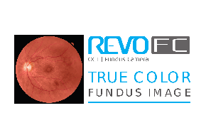 SD-OCT Copernicus REVO FC